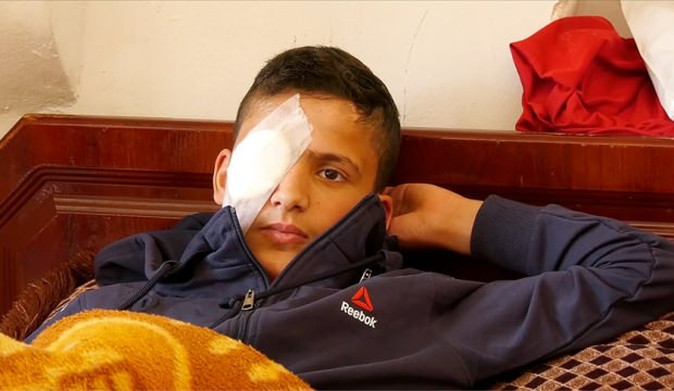 Filistinli çocuk hem gözünü hem de hayallerini kaybetti