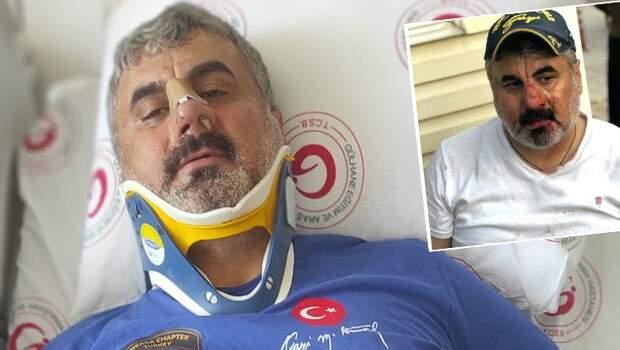 Ankara'da dehşete düşüren olay! 'Bayılana kadar dövdüler'