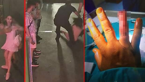 Güvenlik görevlisinin parmağını ısırarak koparmıştı… O turistler ilk kez konuştu!