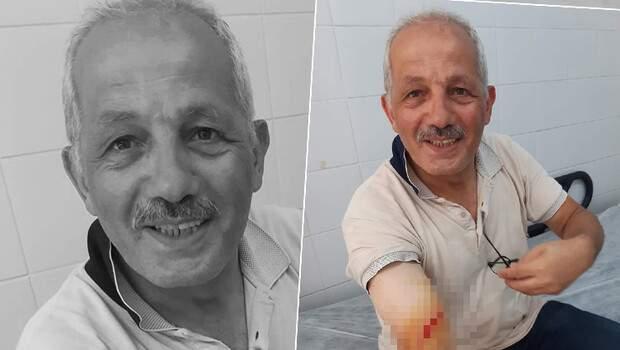 Trabzon'da Köprübaşı Belediye Başkanı Ali Aydın, kurban keserken yaralandı