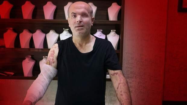 İzmir'de korkunç olay! Kuyumcuya kezzaplı saldırı… Kayıplara karıştı